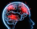 Kopfschmerz - Migräne 2